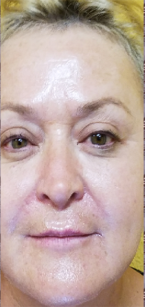 Skin Tightening After