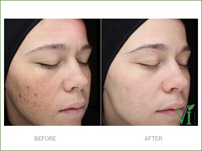 acne-results
