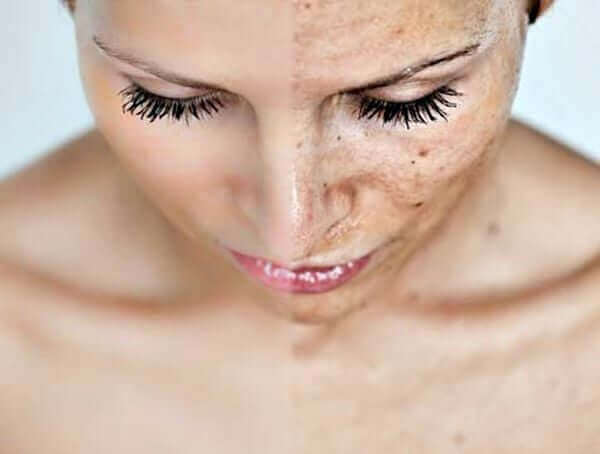 chemical-peel-results