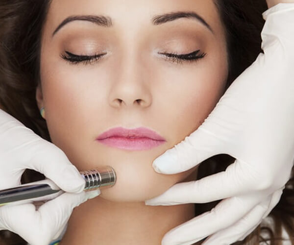microdermabrasion-treatment-face