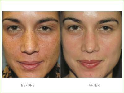 pigmentation-results